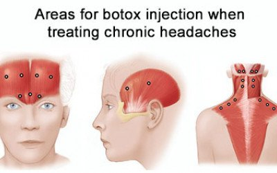 Best Way To Reduce The Frequency of Migraine Headaches - Diagnosis And Treatment - Botox