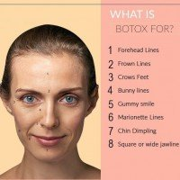 Botox Injections Guidelines For Frown Lines and Wrinkles