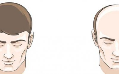 Baldness Phases, Factors, Patterns and Treatment